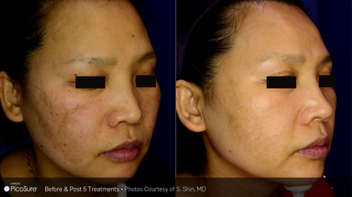 brown facial treatment spots for Laser
